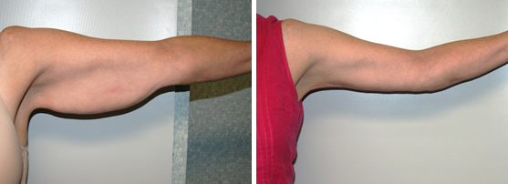 Before & After Pictures of Arm Lift at Ventura Plastic Surgery
