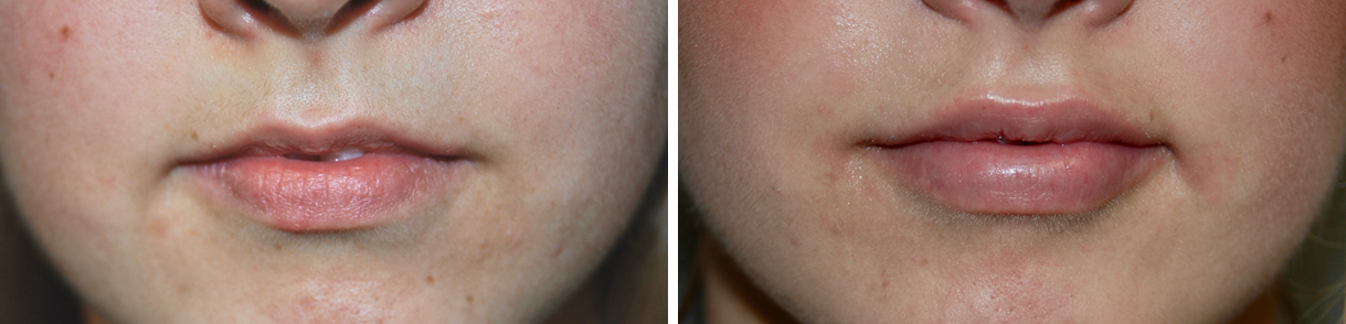 Before & After Pictures of Cosmetic Lip Injections with Juvederm Fillers at Ventura Plastic Surgery