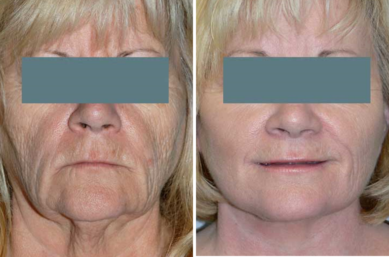 Before & After Pictures of Facelift, Necklift, or Browlift at Ventura Plastic Surgery