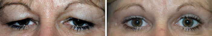 Before & After Pictures of Eyelid Surgery at Ventura Plastic Surgery