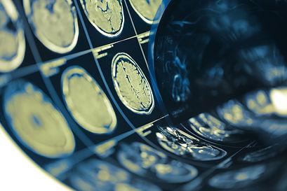 Human brain scan testing film folded in