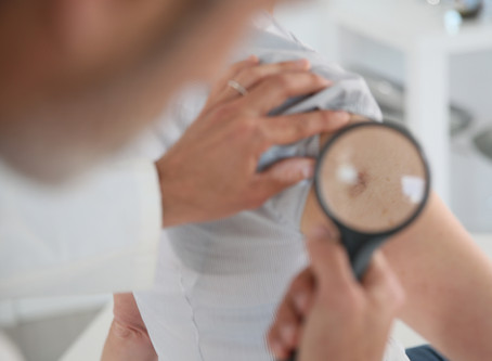 4 Ways Dermatology Can Spot Skin Cancer Symptoms