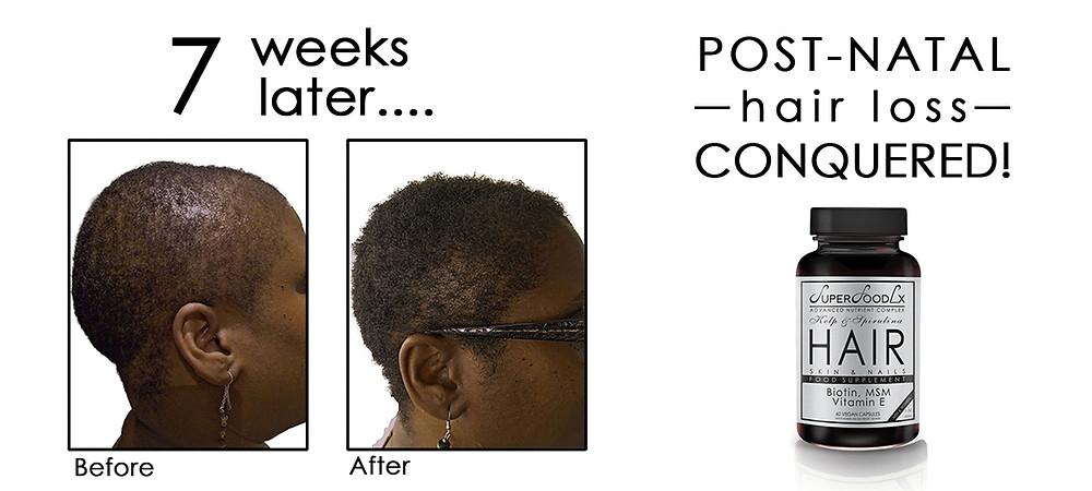 Ogechi Before & After