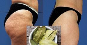 Как быстро похудеть и избавиться от целлюлита с помощью лаврового листа?