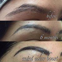 scar removal 1.jpg