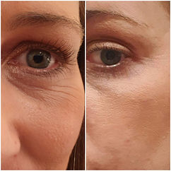 Fibroblast before & after