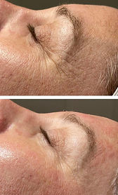 Before and after dermaplaning glow treat