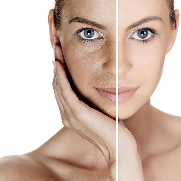 Skin Rejuvenation. Beauty Treatment