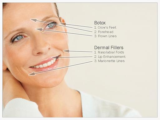 Botox+vs+Fillers.png