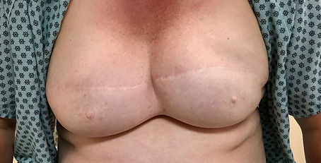 Before areola and nipple pigmentation