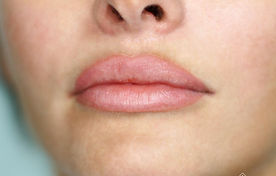 Healed permanent lip color also known as watercolor lips or blush lips