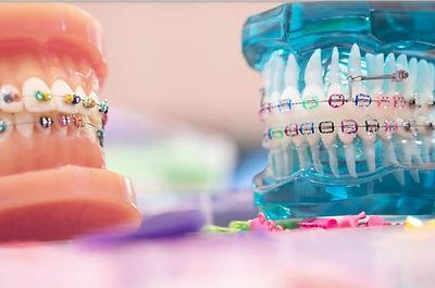 ortodontik.jpeg