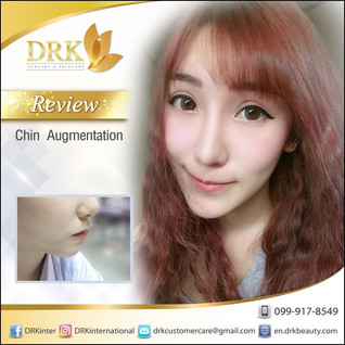 Chin Augmentation VShape Program by Dr. Beer