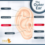 Protruding ears or Bat Ears