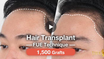 Improve forehead hairline with fuller hair! Hair Transplant FUE technique with 1500 grafts works won