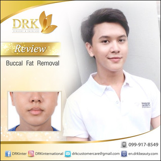 KPOP look alike by Buccal Fat Removal with Dr. Kolawach