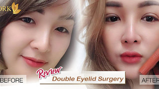 Best face enhancing surgery! Double Eyelid changed my look!