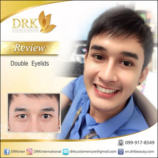 Men's Style Double Eyelid Surgery by Dr. Kolawach