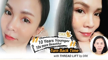 10 years YOUNGER with Thread Lift