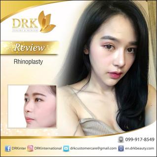 Korean Barbie Nose Lift by Dr. Kolawach