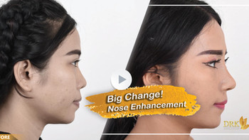 Improve nasal bridge with the RIGHT fit for the facial structure