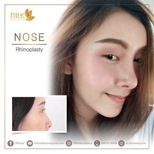 360 Perfect Nose Dimension and Facial Balance through Rhinoplasty by DRK