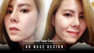 4D Nose Design Rhinoplasty by DRK