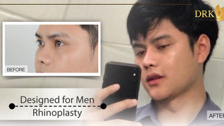Confidence of a real man is a huge achievement! Nose job by DRK made it possible!