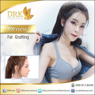 Fat Transfer with Stem Cell Enriched Forehead Augmentation by Dr. Beer
