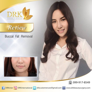 Slim Cheeks Buccal Fat Removal by Dr. Kolawach