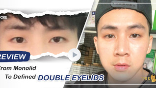 Typical Asian Monolids to Defined Double Eyelids give good look and confidence!