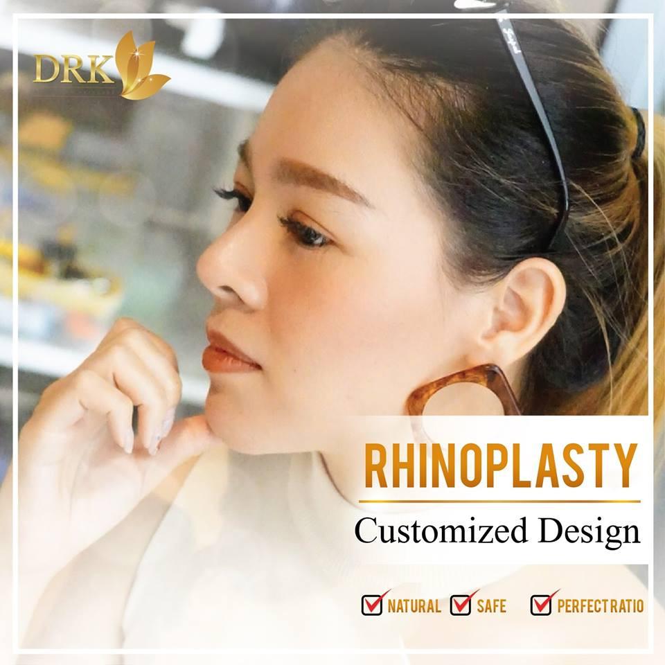 vshape rhinoplasty
