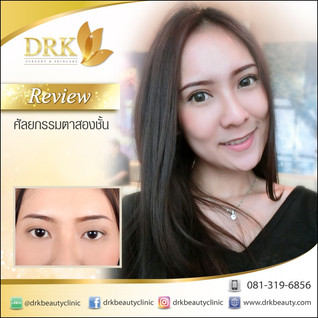 Asian Dolly Eyes through Double Eyelid by Dr. Korn