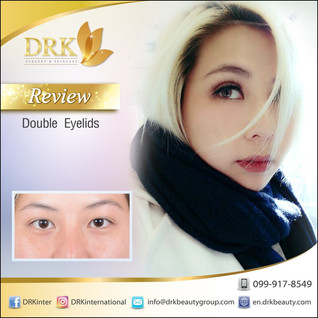 Lovely Dolly Eyes Double Eyelid Surgery by Dr. Korn