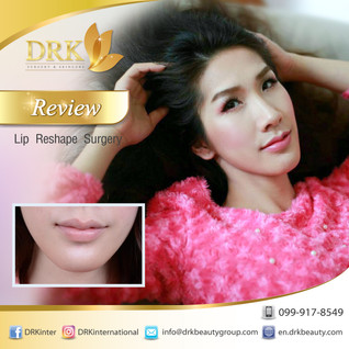 Kissable Lip Reshape Surgery by Dr. Beer