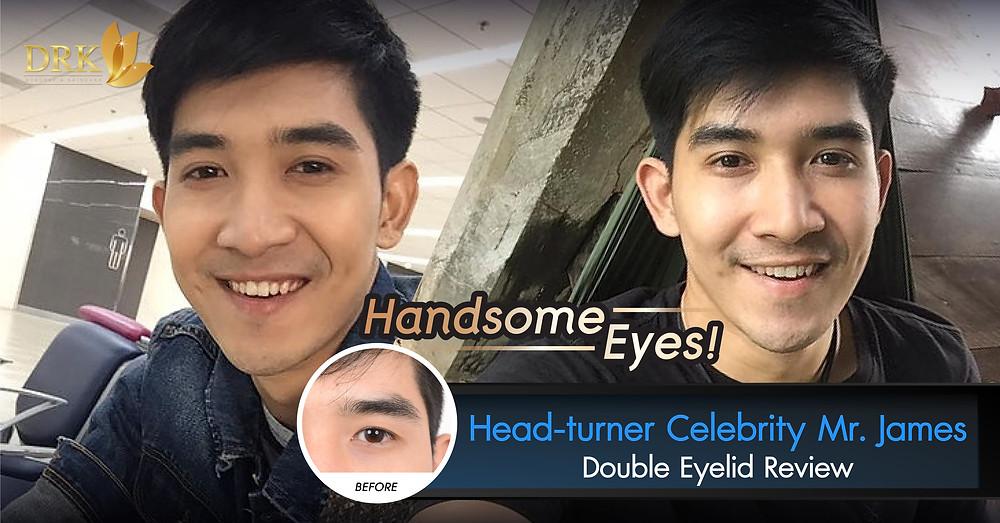 Double Eyelid