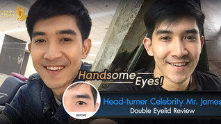 Handsome Eyes for Men Double Eyelid by Dr. Kolawach