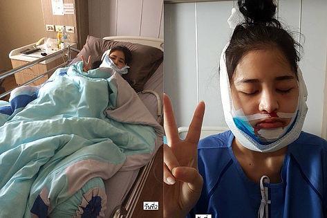 Jaw surgery VLine