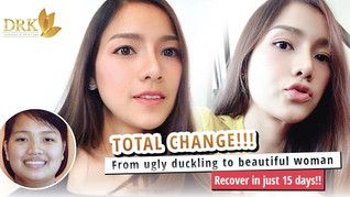 Magical transformation: Achieve beauty in just 15 days!