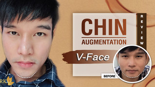 A strong chin is a classic masculine feature! Chin Augmentation by DRK gives prominent chin.