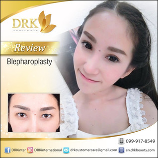 Natural Double Eyelid Surgery with Dr. Beer