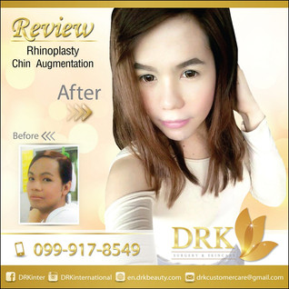 Rhinoplasty and Chin Augmentation by Dr. Beer