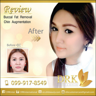 Look younger than your age by Buccal Fat Removal with Dr. Kolawach