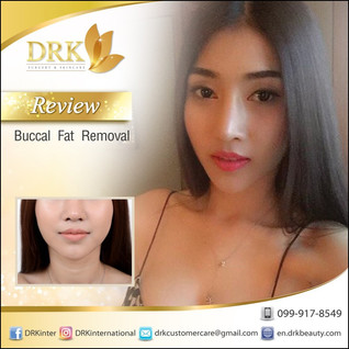 Sexy Vshape Face by Buccal Fat Removal with Dr. Kolawach