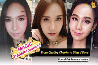 No more round face with Buccal Fat Removal!