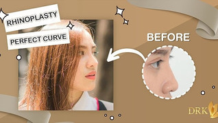 Complete Change look through balanced ratio of Rhinoplasty Perfect Curve!