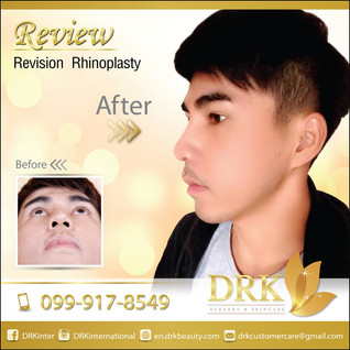 From crooked to perfect nose line, Revision Rhinoplasty by Dr. Kolawach