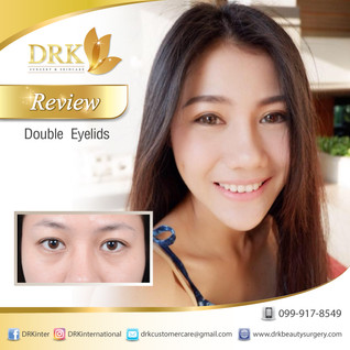 Look beautiful with expressive eyes through Double Eyelid Surgery