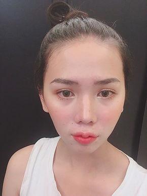 Lip Reshape Surgery