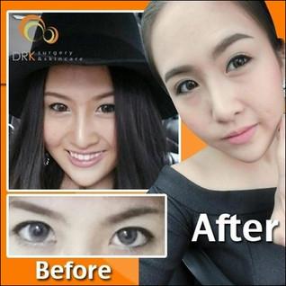 Double Eyelid Surgery for definitive beautiful eyes